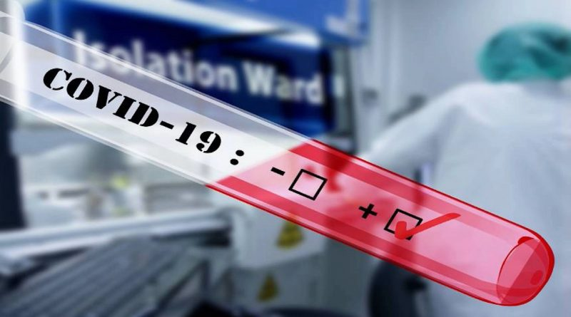Teleboadilla. Test de coronavirus